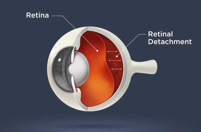 An Overview of Retinal Detachment