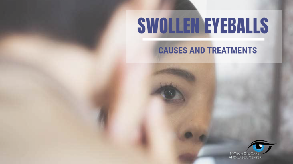 5 Swollen Eyeball Causes and Treatments
