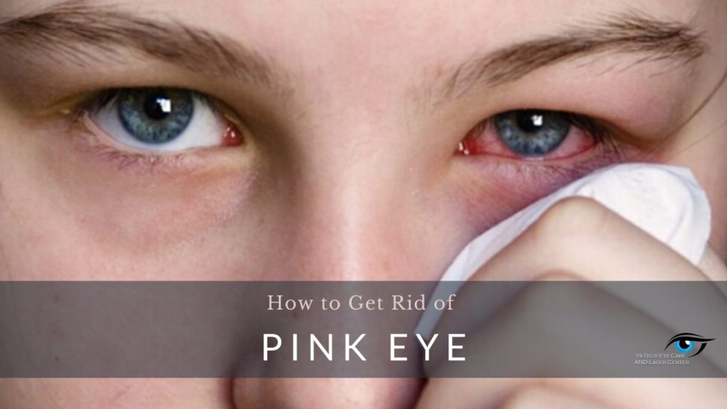 How to Get Rid of Pink Eye Fast