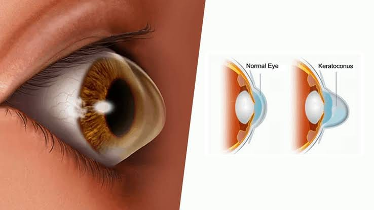 Keratoconus: Causes, Symptoms, Diagnosis, and Treatment Bhopal