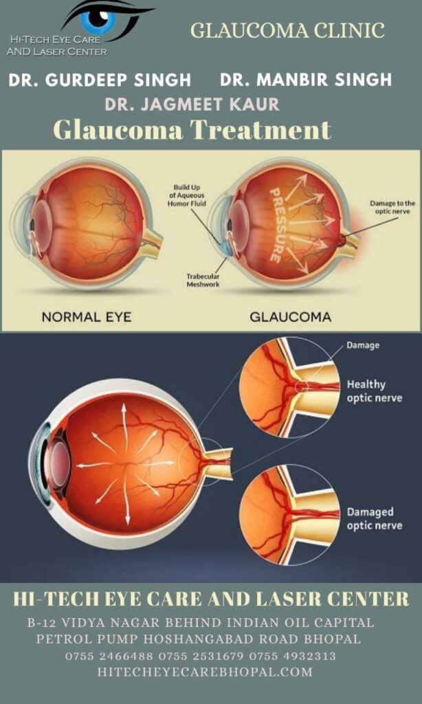 Glaucoma Treatment Hitech Eye Care and Laser Center Bhopal